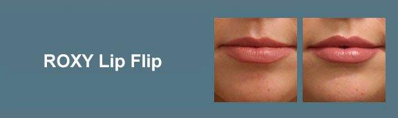 Lip Flip Gallery